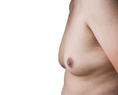 Gynecomastia costs