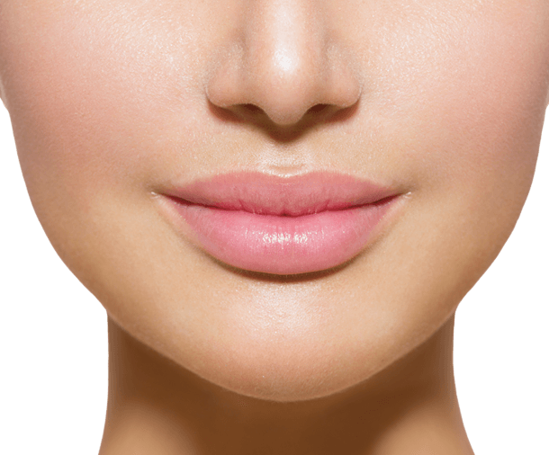 Lip Correction with Hyaluronic Acid berlin