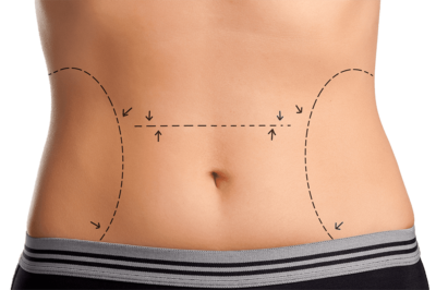 liposuction costs berlin